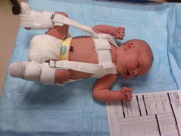 Изображение - Почему у ребенка хрустят суставы 10 лет hrust-v-tazobedrennom-sustave-grudnichka-600x450