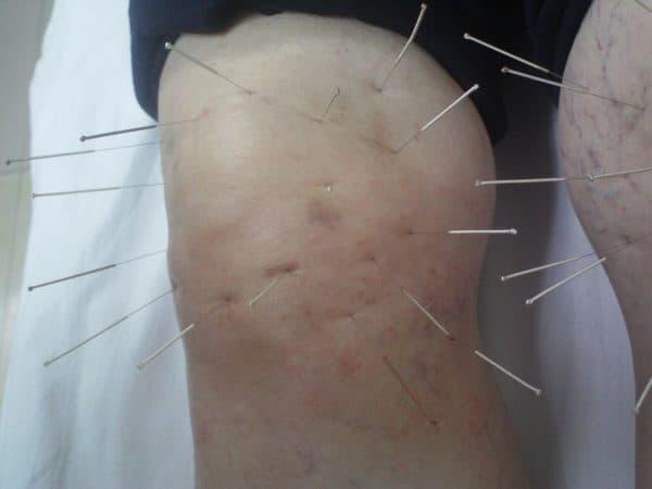 Иглоукалывание для лечения коленного анкилоза