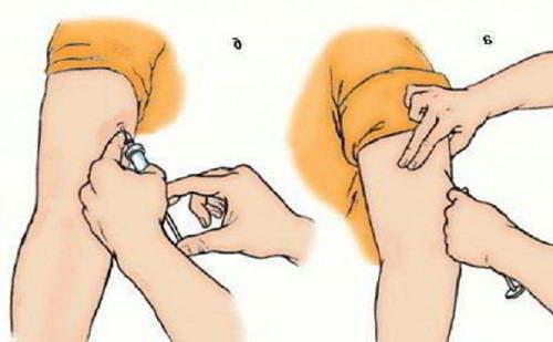 Изображение - Уколы для суставов внутримышечно inekcii-v-loktevoj-sustav