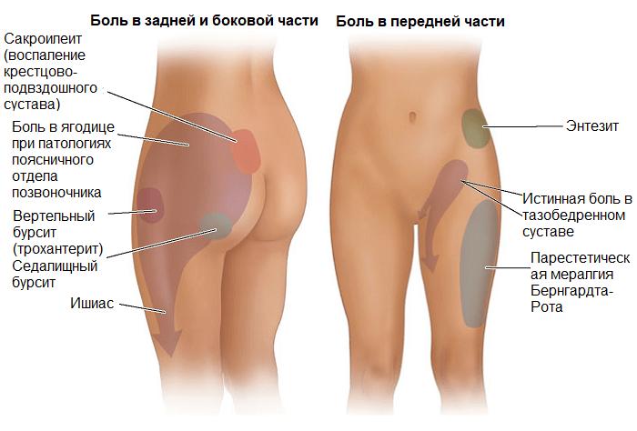 Локализация боли в бедре при различных заболеваниях