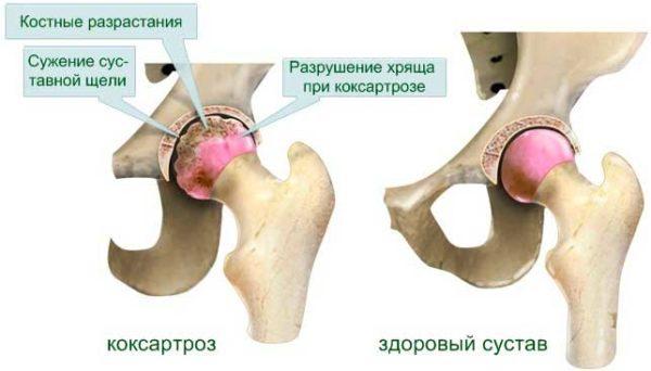 Изображение - Какие структуры сустава поражаются при остеоартрите koksartroz-600x342