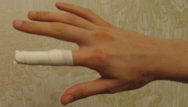 компресс для больного сустава пальца
