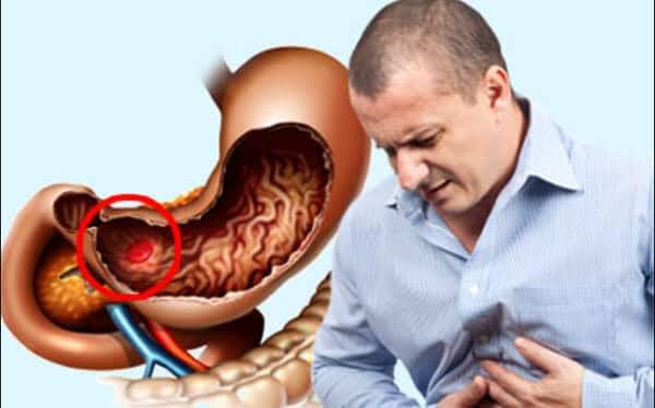 НПВС и желудочно-кишечный тракт: осложнения и их профилактика