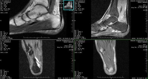 КТ при артрите