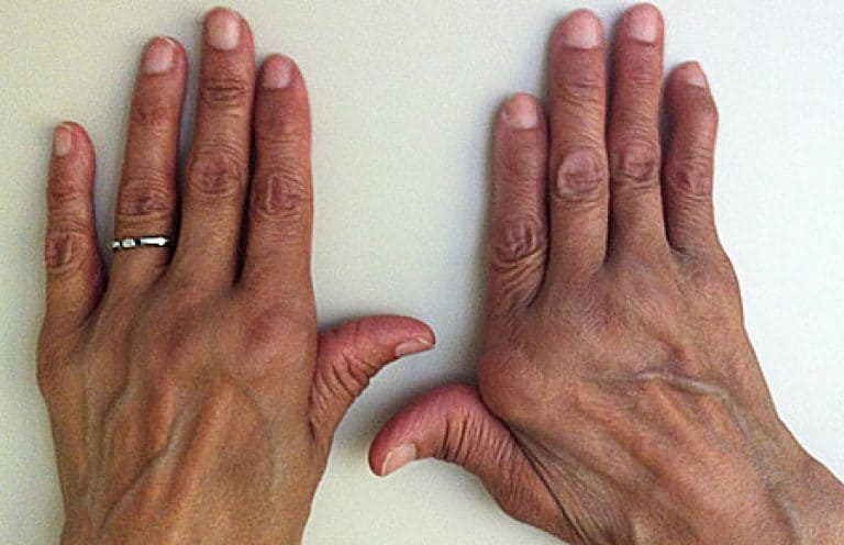 Все о реактивном полиартрите суставов и его разновидностях