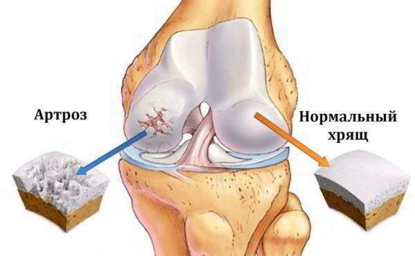 лечение суставов одуванчиком