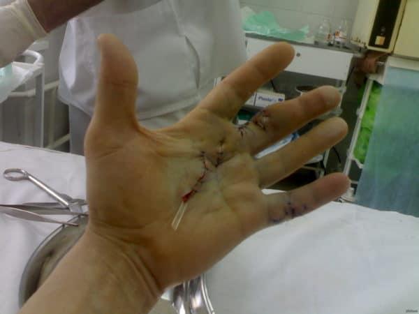 лигаменит кисти операция