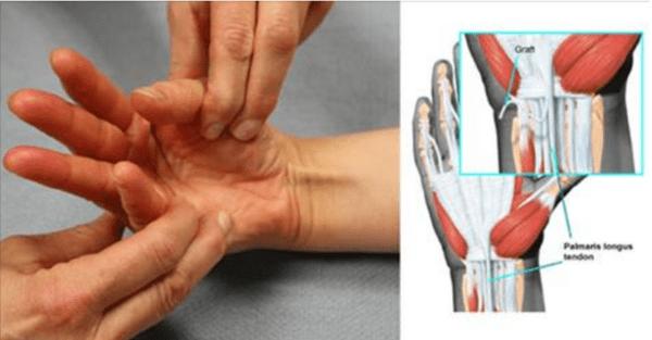 Лигаментит большого пальца руки