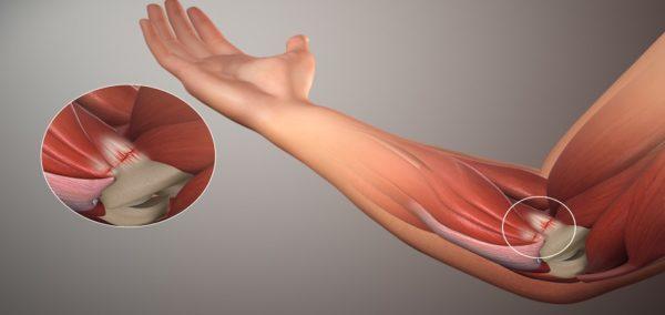 Изображение - Какие структуры сустава поражаются при остеоартрите loktevoy-osteoartrit-600x284