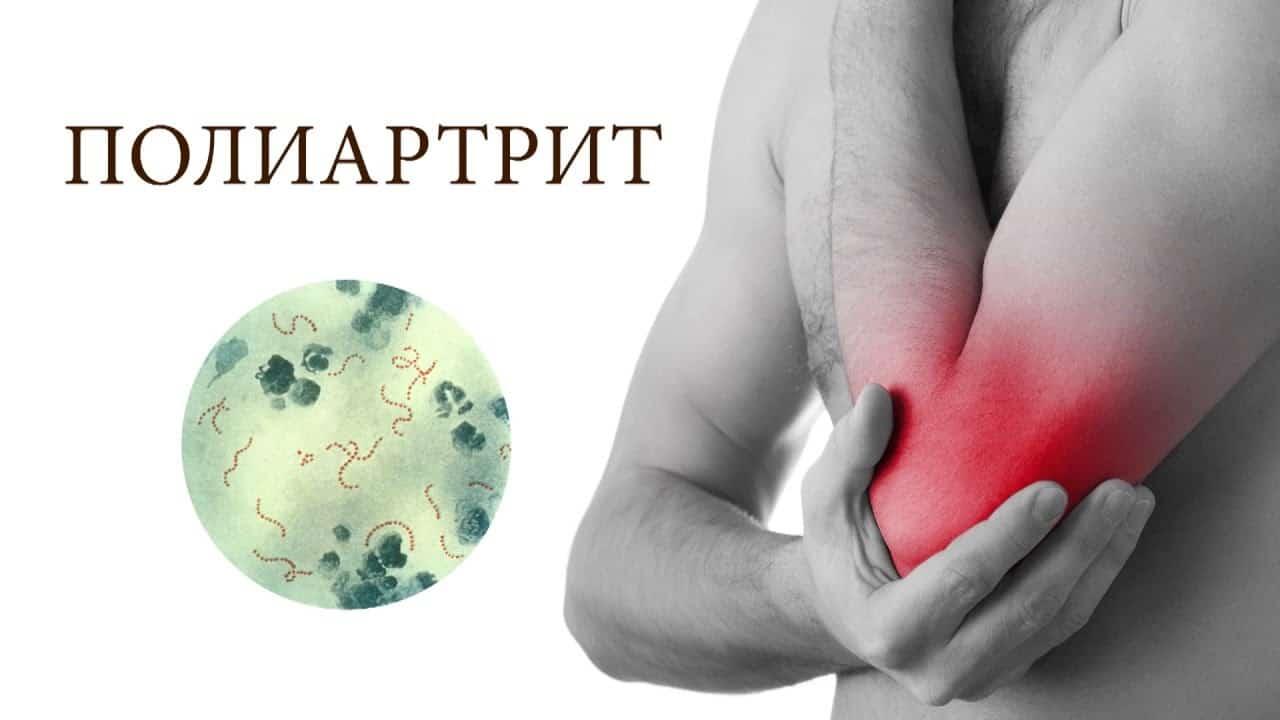 Чем отличается артрит от полиартрита