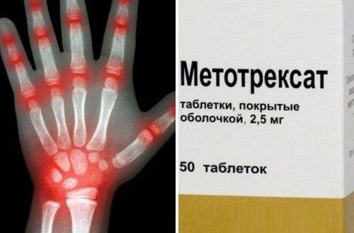 метроксат