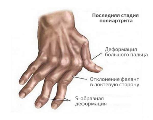 Микрокристаллический (обменный) полиартрит
