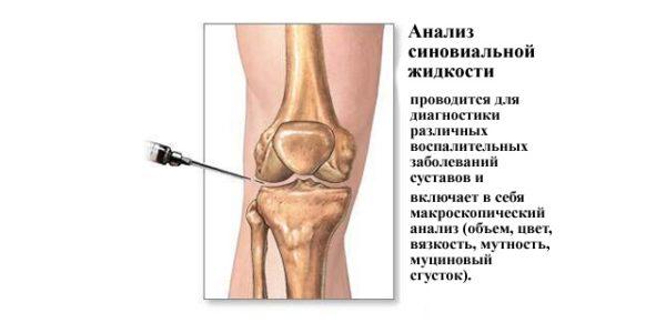 Изображение - Скапливается жидкость в коленном суставе что делать mikroskopicheskiy-analiz-600x300