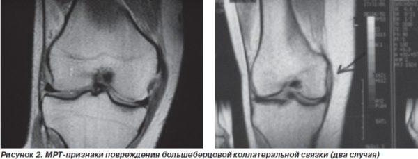 Изображение - Сколько стоит томография коленного сустава mrt-5-600x229