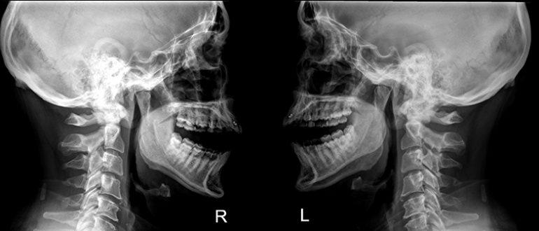 Мрт височно-челюстных суставов санатории в одессе специализирующиеся на лечении воспалении суставов