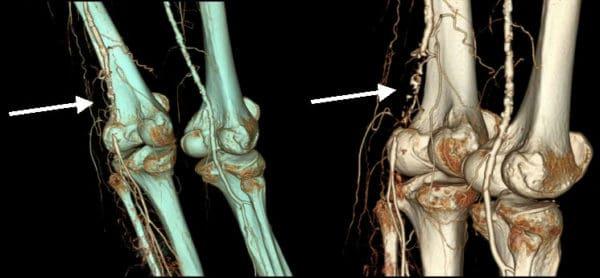 Изображение - Сколько стоит томография коленного сустава mskt-kolena-600x278