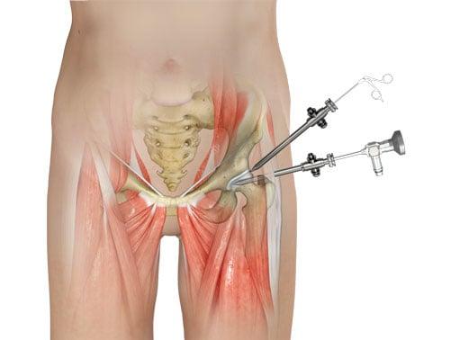 Новая операция при импиджмент-синдроме тазобедренного сустава