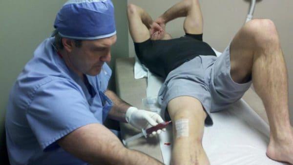 операция синовита