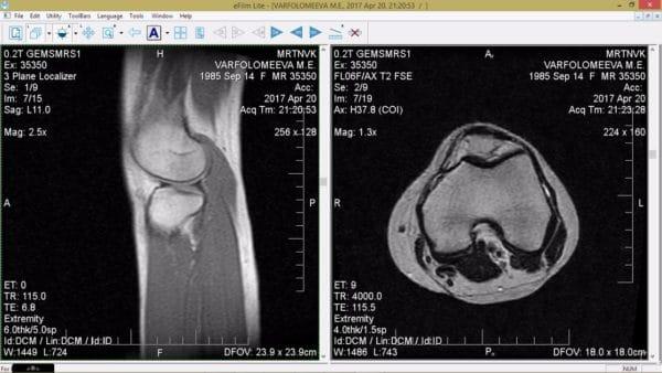 Изображение - Сколько стоит томография коленного сустава opuhol-nadkolennoy-chashechkoy-600x338