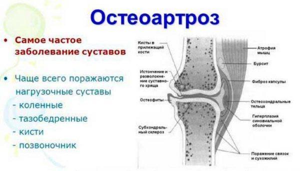 Изображение - Какие структуры сустава поражаются при остеоартрите osteoartrit-600x342