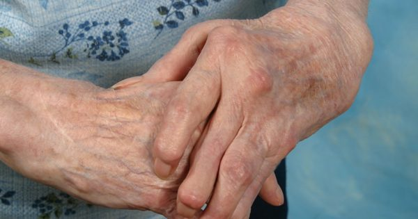 Остеоартрит кистей рук