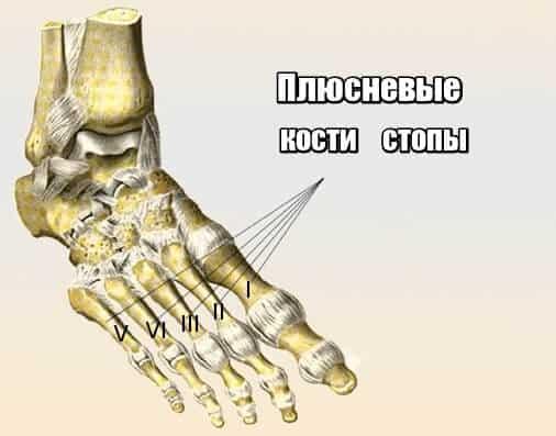 Остеоартрит плюсны