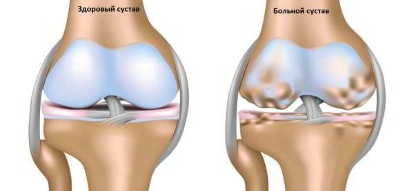 остеохондроз коленного сустава