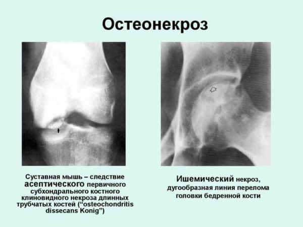 остеонекроз