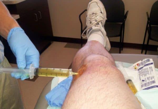 Изображение - Воспаление коленного сустава скопление жидкости otkachivanie-zhidkosti-600x414