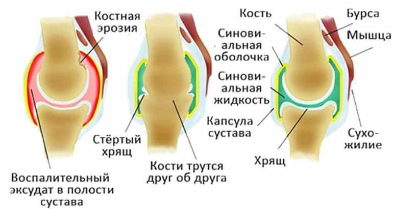 Отличия артрита и артроза