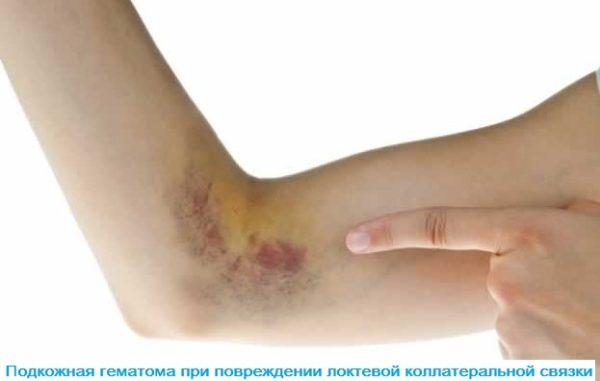 Изображение - Массаж при растяжении связок локтевого сустава podkozhnaya-gematoma-600x381