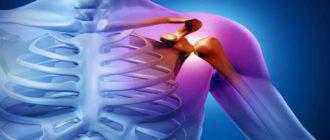 Полиартрит плечевого и коленного суставов