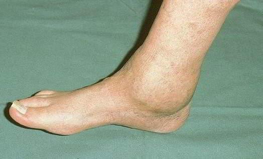 2. Поражение голеностопного сустава