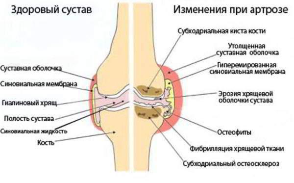 Артрит рук кистей и пальцев как и чем лечить признаки и диета