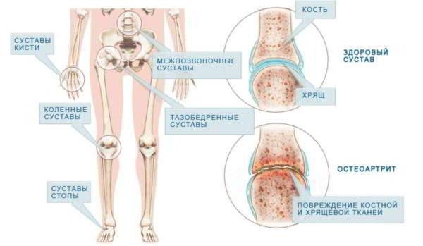 Изображение - Тендиноз тазобедренного сустава симптомы и лечение povrezhdenie-600x349