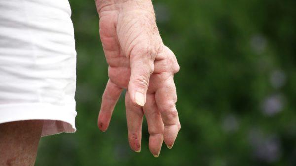 припухлость пораженных суставов