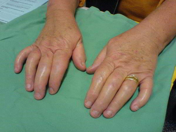 псориартрический артрит