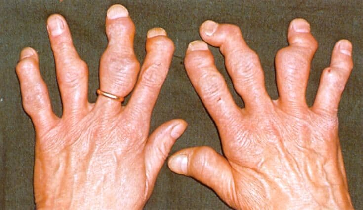 Псориазный полиартрит