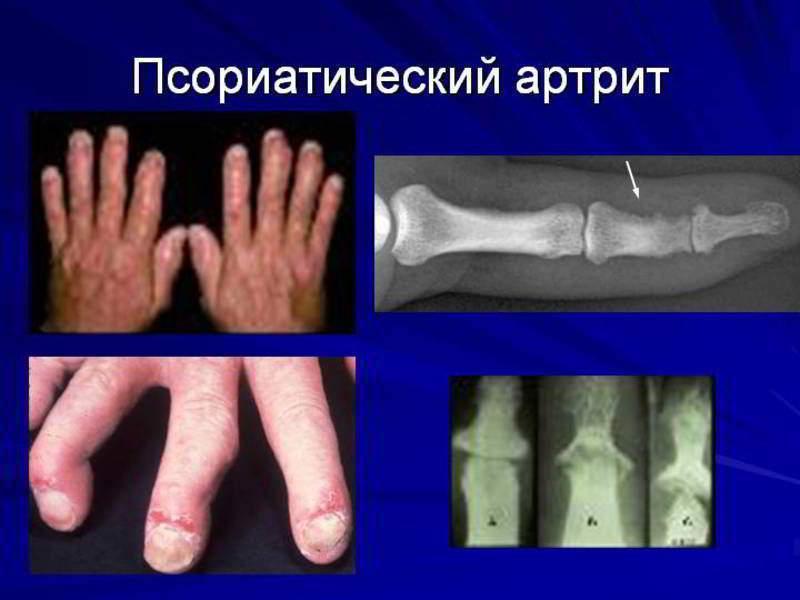 Кривые суставы