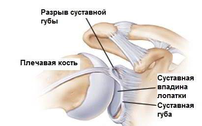 Хрустят суставы по всему телу причины лечение хруста в суставах