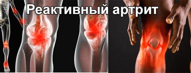 Специализируется на лечении остеохондроза