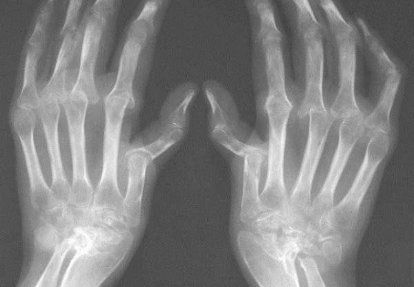 рентген при артрите