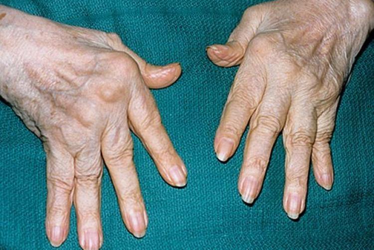 Ревматоидный артрит и рак