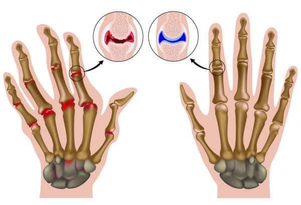 Изменения суставов пальцев рук при ревматоидном артрите. Слева пораженный сустав, справа - здоровый.