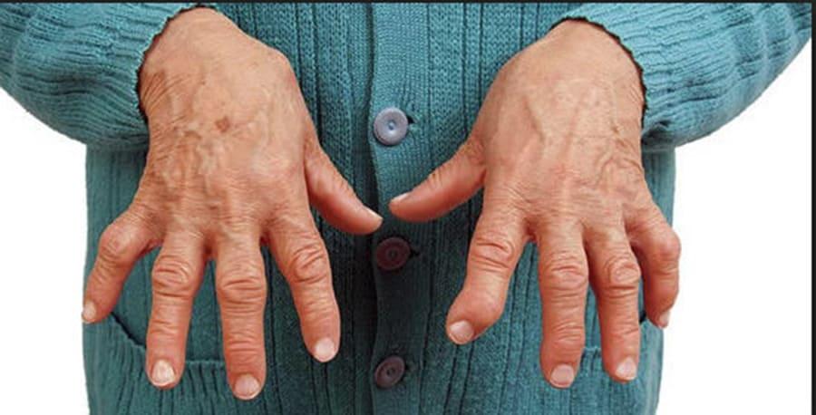 Лечение ревматоидного артрита пальцев и кистей рук первые симптомы