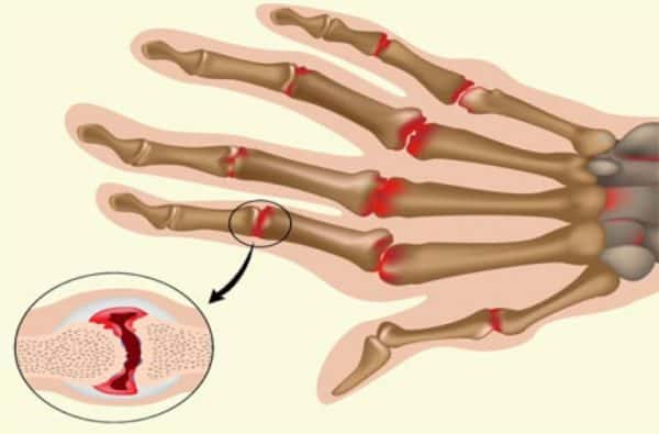 Ревматоидный полиартрит