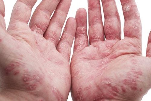 секукинумаб новый препарат при псориатическом артрите