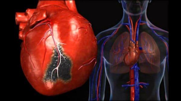 Сердечные осложнения