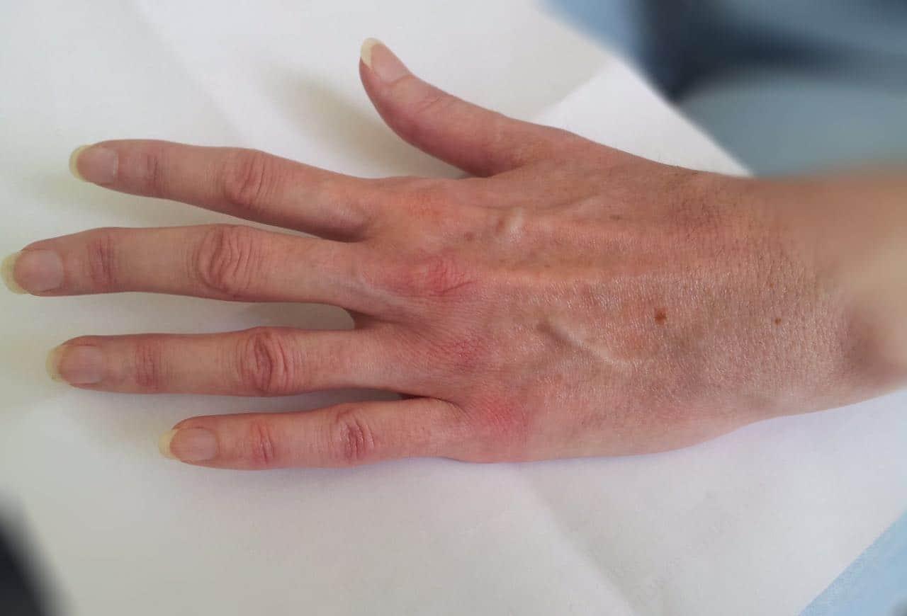 Что такое серопозитивный ревматоидный артрит? Стадии болезни, диагностика и виды лечения.
