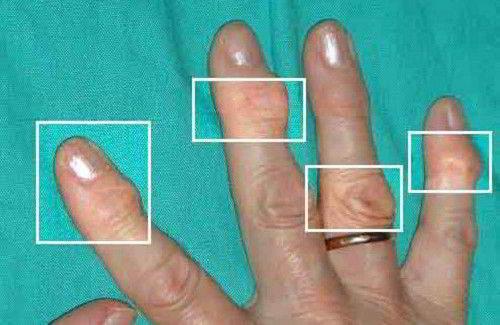 Изображение - Артроз кистевого сустава симптомы shishki